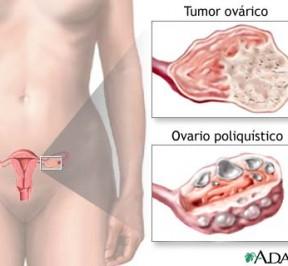 ovario-poliquistico